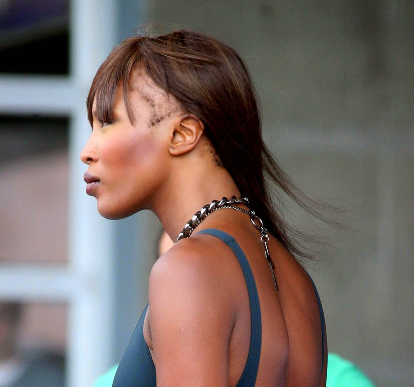 Naomi Campbell y su Alopecia.